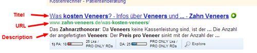 veneers-kosten-pro-zahn
